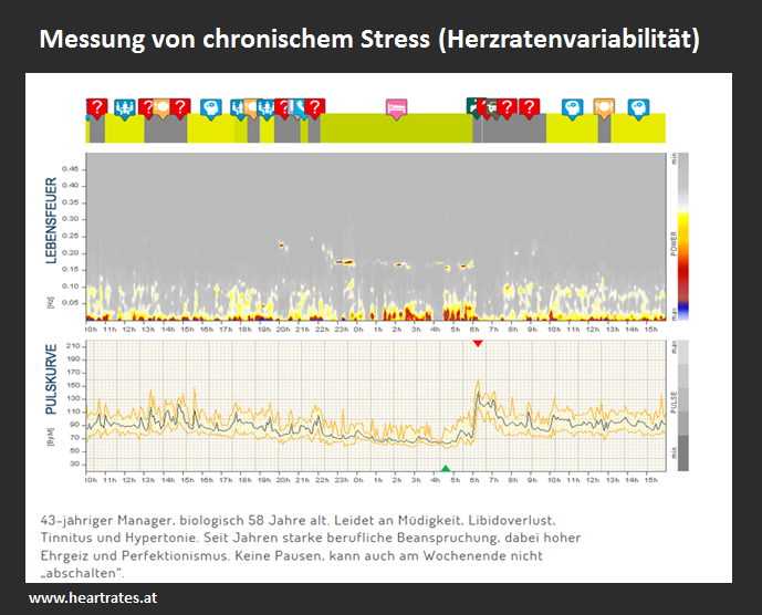 Array (     [ID] => 1041     [id] => 1041     [title] => HRV2     [filename] => HRV2.png     [filesize] => 286796     [url] => http://blog.zielraeume.ch/wp-content/uploads/2015/09/HRV2.png     [link] => http://blog.zielraeume.ch/hrv/hrv2/     [alt] =>      [author] => 2     [description] =>      [caption] =>      [name] => hrv2     [status] => inherit     [uploaded_to] => 1039     [date] => 2015-09-21 15:55:43     [modified] => 2015-09-21 15:55:43     [menu_order] => 0     [mime_type] => image/png     [type] => image     [subtype] => png     [icon] => http://blog.zielraeume.ch/wp-includes/images/media/default.png     [width] => 689     [height] => 556     [sizes] => Array         (             [thumbnail] => http://blog.zielraeume.ch/wp-content/uploads/2015/09/HRV2-150x150.png             [thumbnail-width] => 150             [thumbnail-height] => 150             [medium] => http://blog.zielraeume.ch/wp-content/uploads/2015/09/HRV2-300x242.png             [medium-width] => 300             [medium-height] => 242             [medium_large] => http://blog.zielraeume.ch/wp-content/uploads/2015/09/HRV2.png             [medium_large-width] => 689             [medium_large-height] => 556             [large] => http://blog.zielraeume.ch/wp-content/uploads/2015/09/HRV2.png             [large-width] => 689             [large-height] => 556             [wysija-newsletters-max] => http://blog.zielraeume.ch/wp-content/uploads/2015/09/HRV2.png             [wysija-newsletters-max-width] => 600             [wysija-newsletters-max-height] => 484         )  )